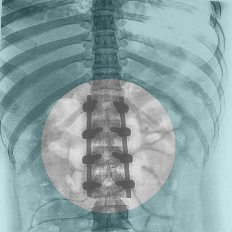 Spondylodese